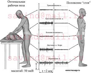 Амплитуда биоэлектрической активности некоторых скелетных мышц при работе в оптимальной позе и в удобном положении «стоя».